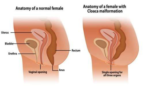総排泄腔遺残症の画像