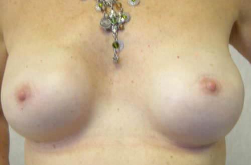 離れたバストの乳首画像